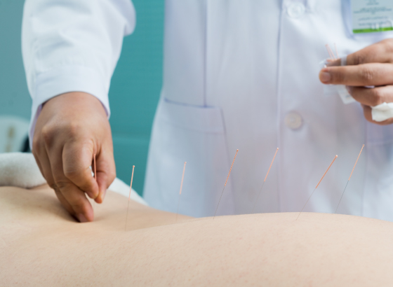 Acupuncture in Dubai