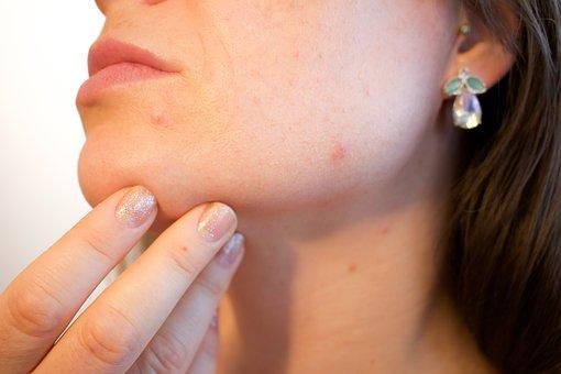 Traditional Chinese Medicine for Acne